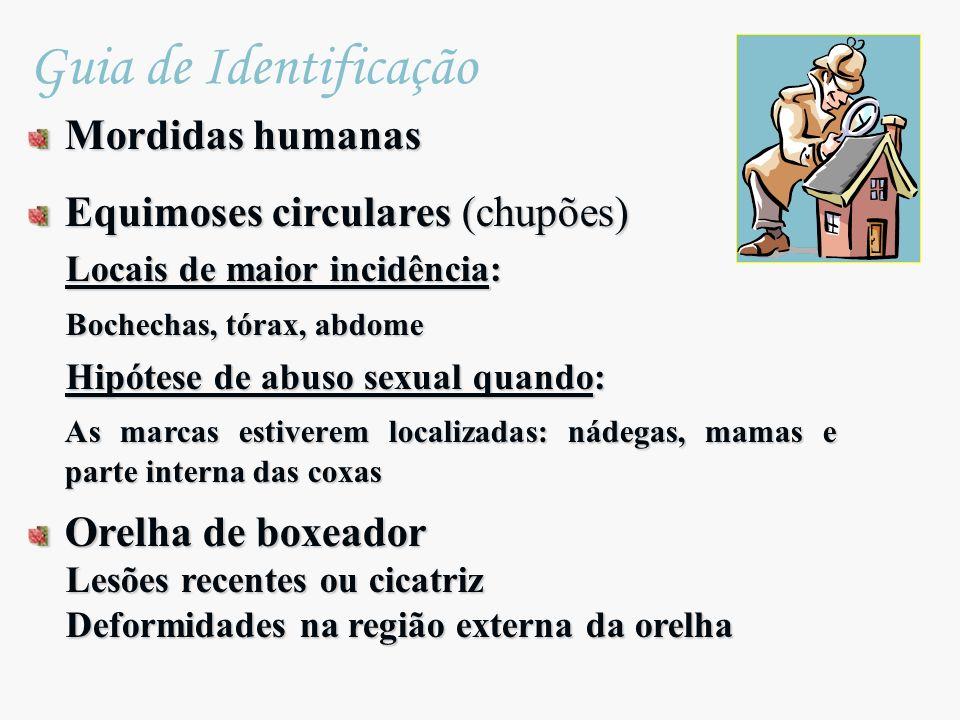Mordidas humanas Equimoses circulares (chupões) Locais de maior incidência: Locais de maior incidência: Bochechas, tórax, abdome Bochechas, tórax, abd
