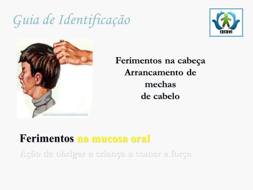 Ferimentos na mucosa oral Ação de obrigar a criança a comer a força Guia de Identificação Fonte: www.observatoriodainfancia.com.brwww.observatoriodain