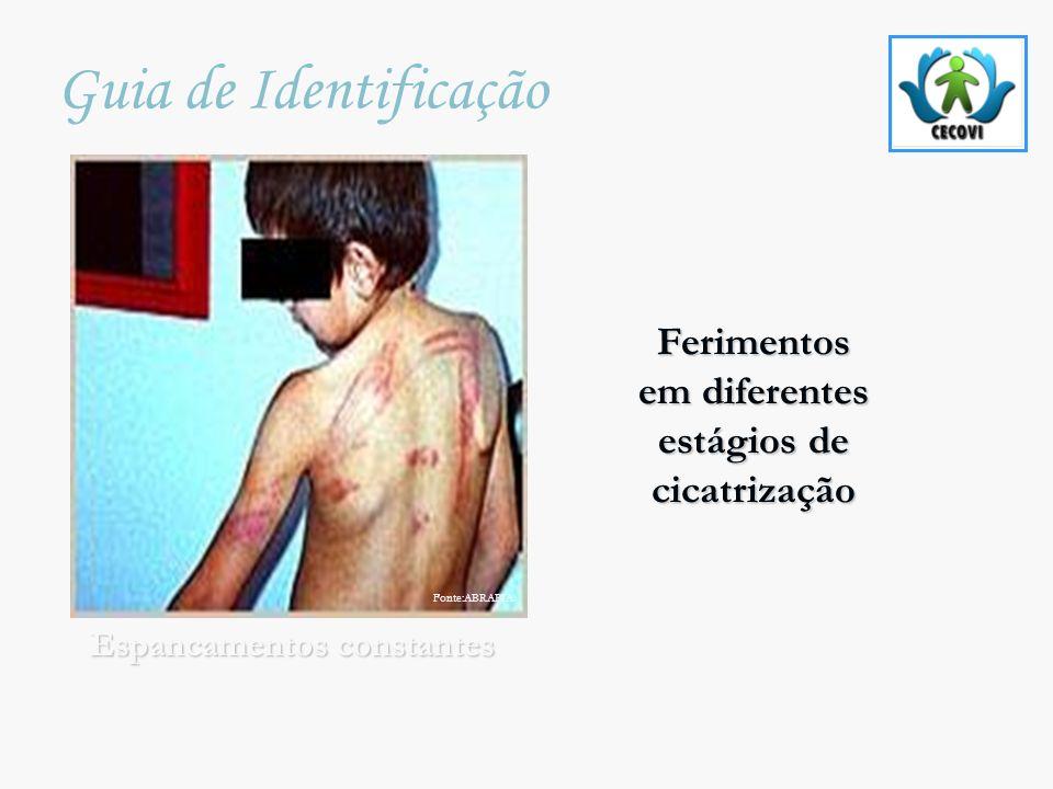 Ferimentos Ferimentos em diferentes em diferentes estágios de estágios de cicatrização cicatrização Guia de Identificação Espancamentos constantes Fon