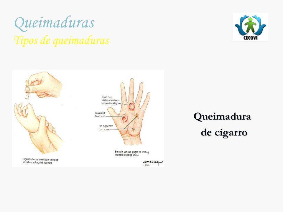 Queimaduras Tipos de queimaduras Queimadura de cigarro
