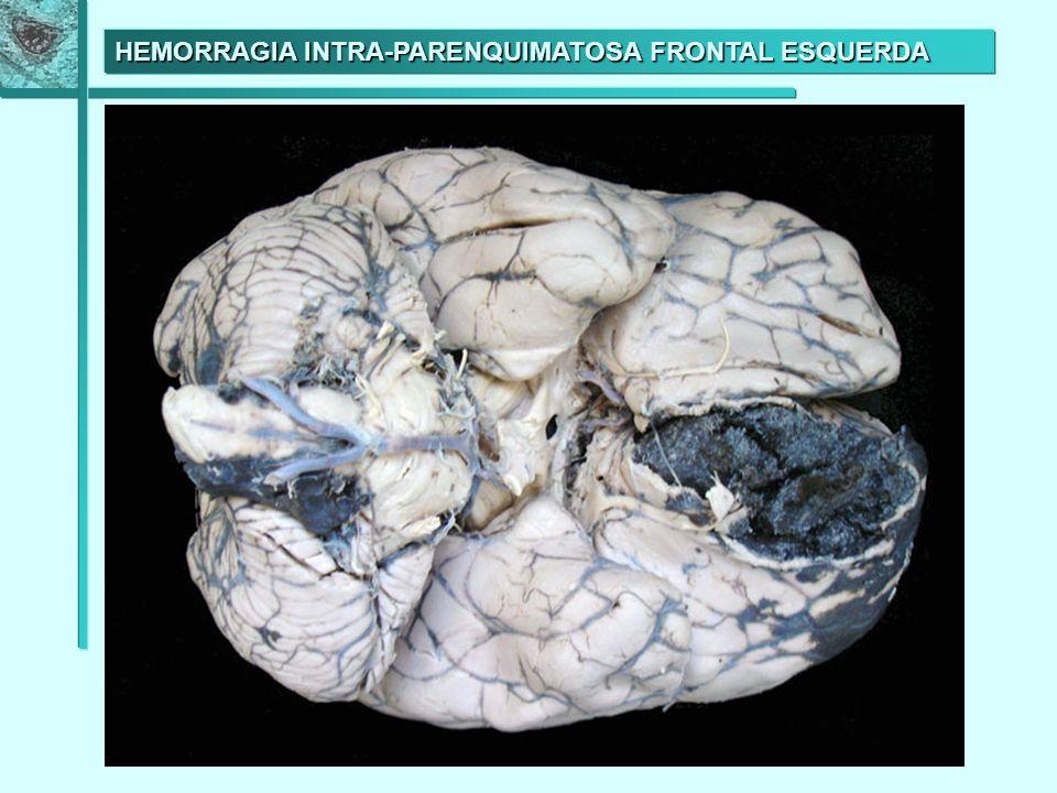 HEMORRAGIA INTRA-PARENQUIMATOSA FRONTAL ESQUERDA
