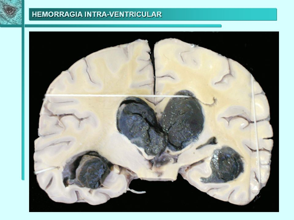 HEMORRAGIA INTRA-VENTRICULAR