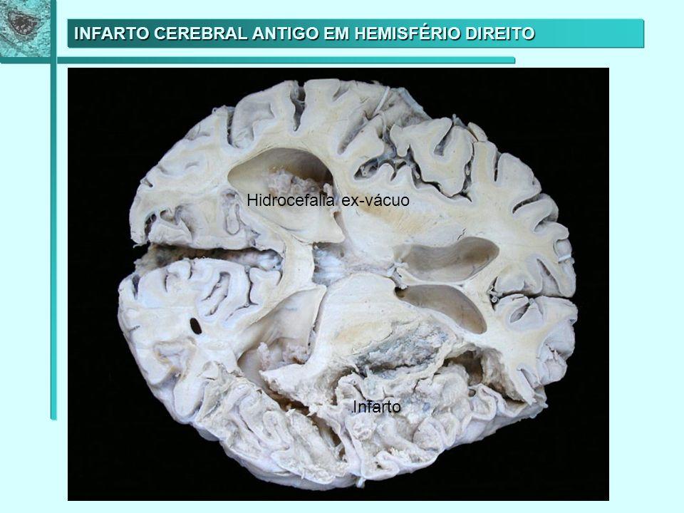 INFARTO CEREBRAL ANTIGO EM HEMISFÉRIO DIREITO Infarto Hidrocefalia ex-vácuo