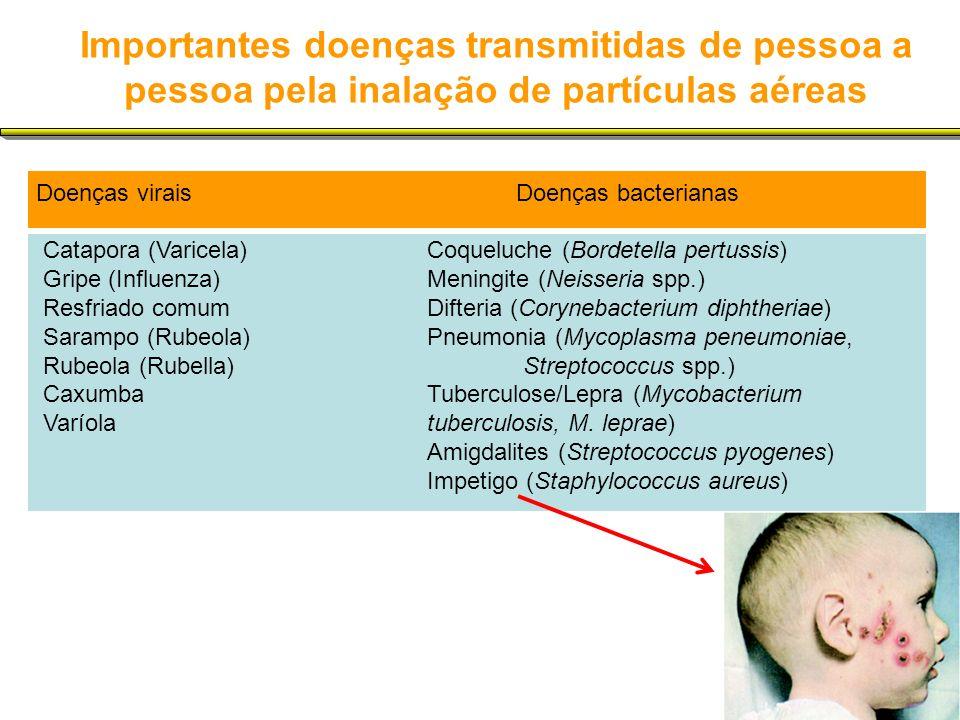 Importantes doenças transmitidas de pessoa a pessoa pela inalação de partículas aéreas Doenças viraisDoenças bacterianas Catapora (Varicela)Coqueluche