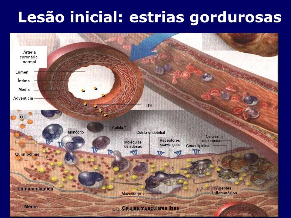 Lesão inicial: estrias gordurosas Adventícia Média Íntima Lúmen Artéria coronária normal Moléculas de adesão Monócito LDL Receptores scavengers Célula