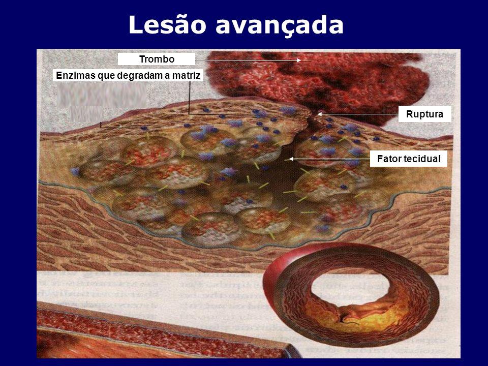 Lesão avançada Ruptura Trombo Enzimas que degradam a matriz Fator tecidual