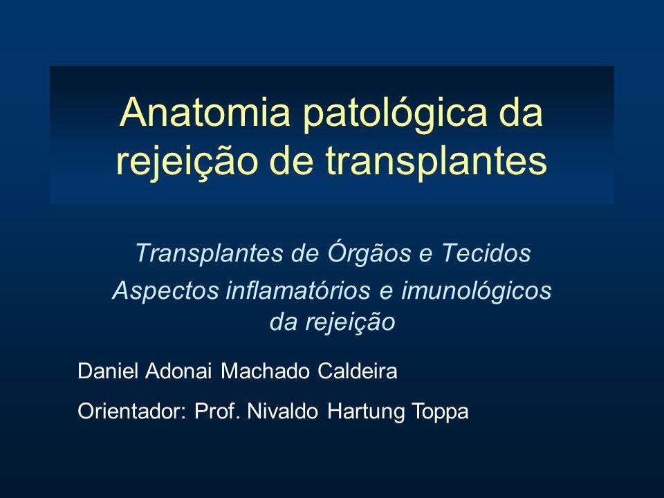 Anatomia patológica da rejeição de transplantes Transplantes de Órgãos e Tecidos Aspectos inflamatórios e imunológicos da rejeição Daniel Adonai Macha