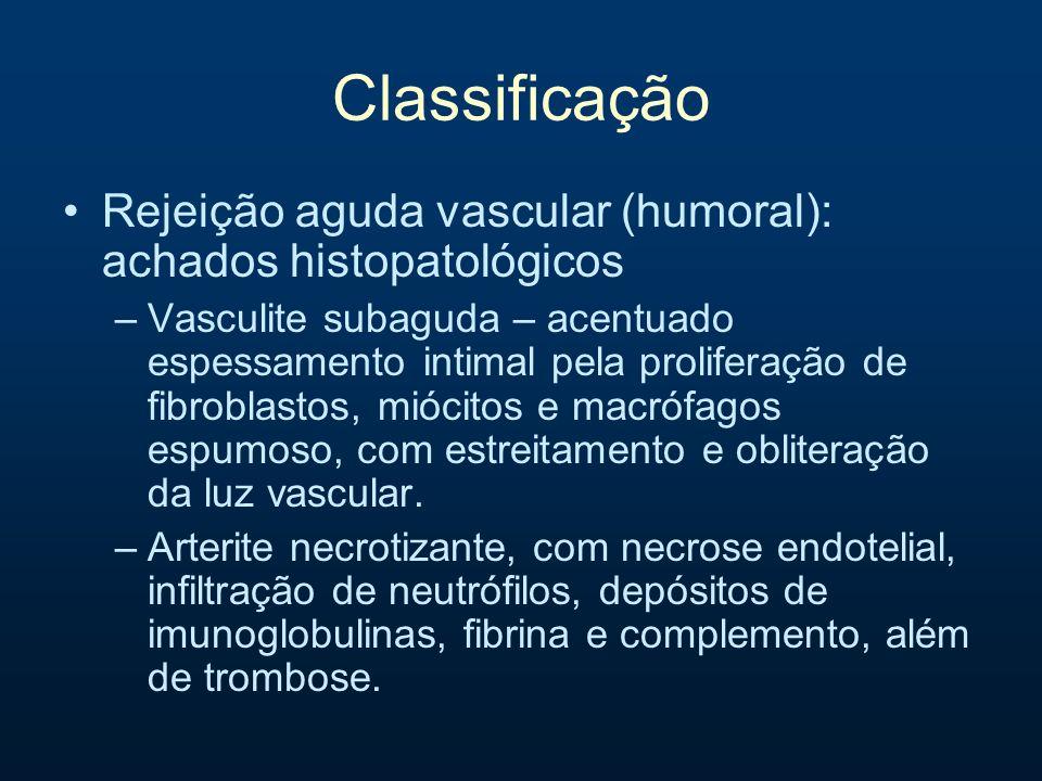 Classificação Rejeição aguda vascular (humoral): achados histopatológicos –Vasculite subaguda – acentuado espessamento intimal pela proliferação de fi
