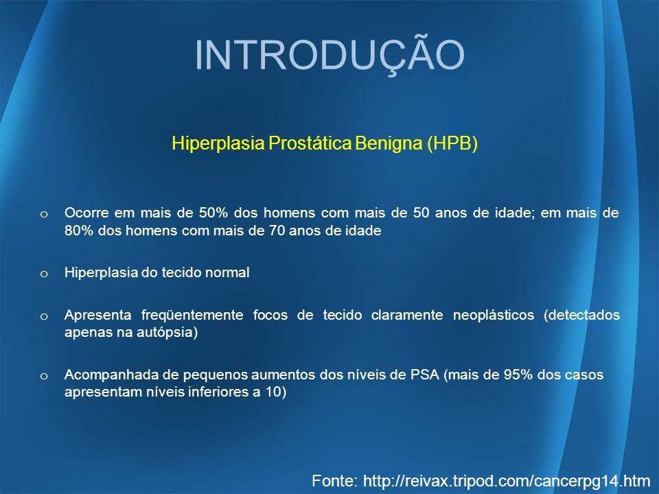 INTRODUÇÃO Hiperplasia Prostática Benigna (HPB) o Ocorre em mais de 50% dos homens com mais de 50 anos de idade; em mais de 80% dos homens com mais de