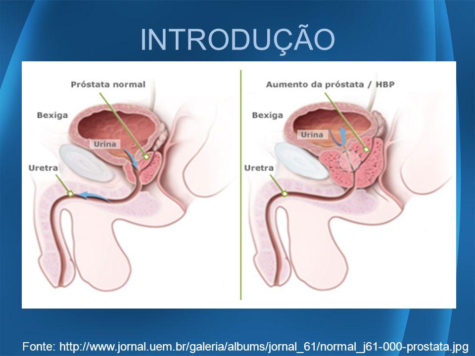 INTRODUÇÃO Fonte: http://www.jornal.uem.br/galeria/albums/jornal_61/normal_j61-000-prostata.jpg