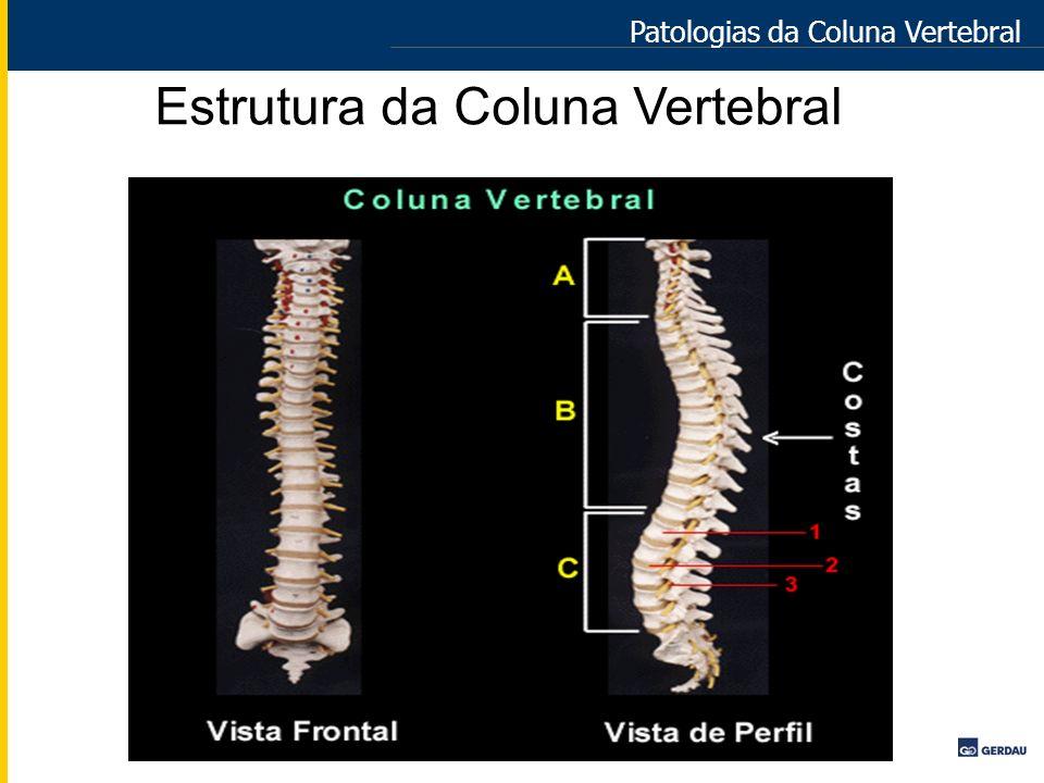 Patologias da Coluna Vertebral Estrutura da Coluna Vertebral