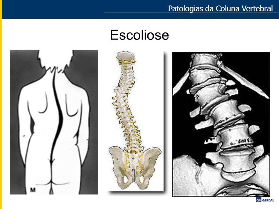 Escoliose Patologias da Coluna Vertebral