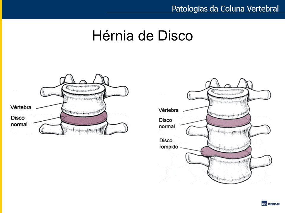 Hérnia de Disco Patologias da Coluna Vertebral
