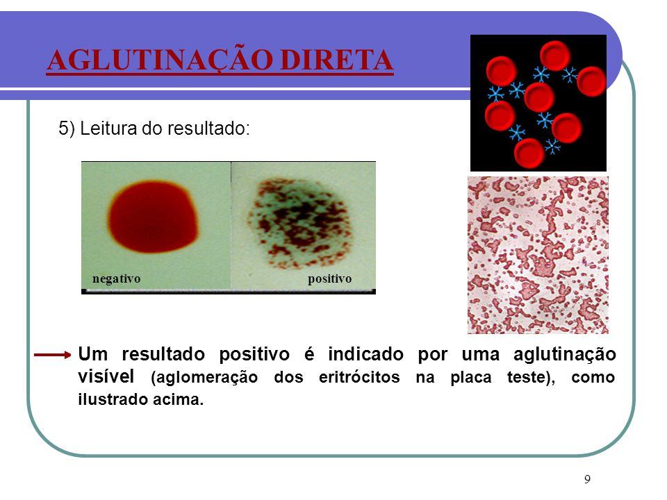 9 5) Leitura do resultado: Um resultado positivo é indicado por uma aglutinação visível (aglomeração dos eritrócitos na placa teste), como ilustrado a