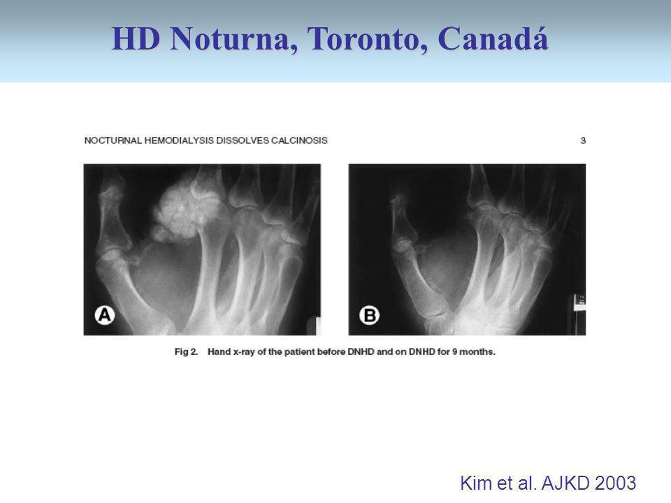 Kim et al. AJKD 2003 HD Noturna, Toronto, Canadá