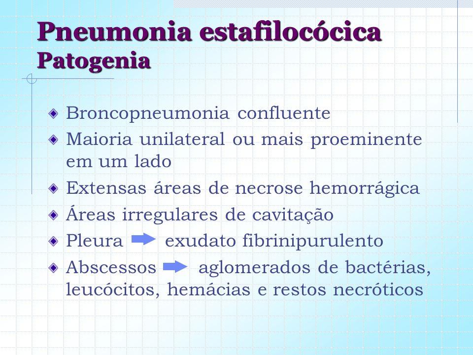 Pneumonia estafilocócica Patogenia Broncopneumonia confluente Maioria unilateral ou mais proeminente em um lado Extensas áreas de necrose hemorrágica