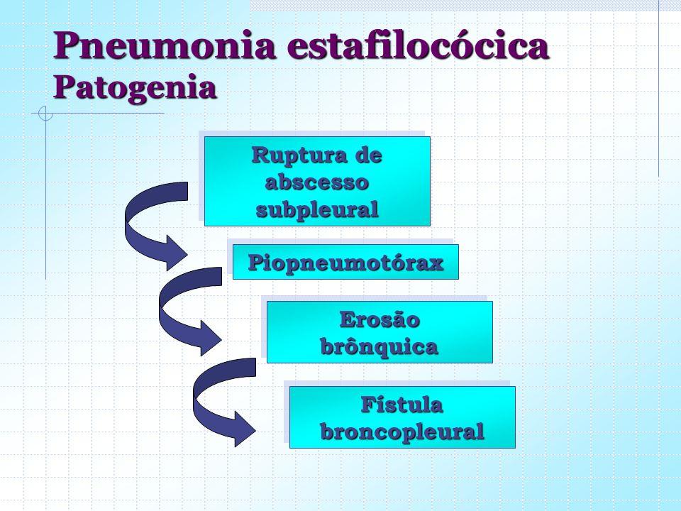 Ruptura de abscesso subpleural PiopneumotóraxPiopneumotórax Fístula broncopleural ErosãobrônquicaErosãobrônquica