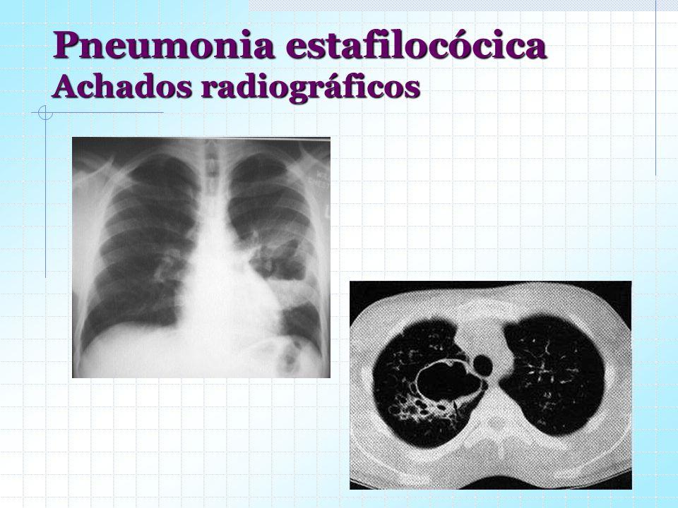 Pneumonia estafilocócica Achados radiográficos