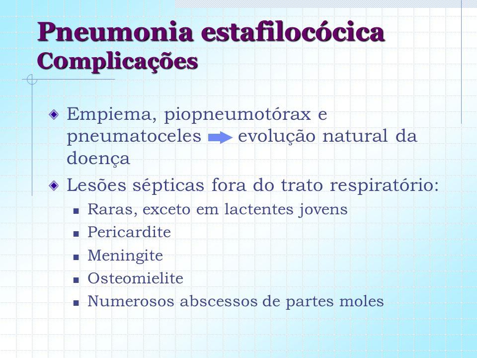 Pneumonia estafilocócica C0mplicações Empiema, piopneumotórax e pneumatoceles evolução natural da doença Lesões sépticas fora do trato respiratório: R