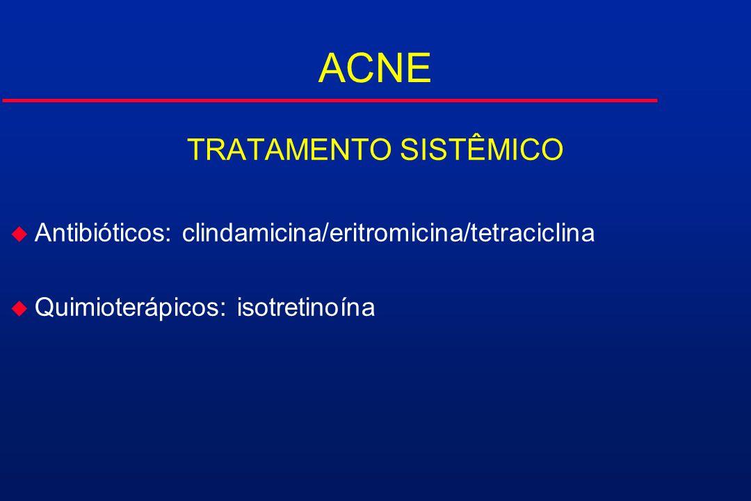 ACNE TRATAMENTO SISTÊMICO u Antibióticos: clindamicina/eritromicina/tetraciclina u Quimioterápicos: isotretinoína