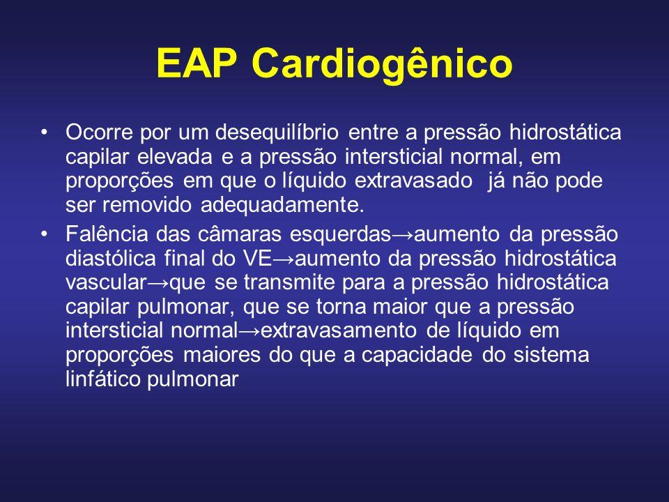 OUTROS MECANISMOS DE FORMAÇÃO DO EAP Aumento da permeabilidade capilar pulmonar Pressão coloidosmótica intravascular reduzida Aumento da pressão negativa intersticial Insuficiência pós-transplantes/linfangites Causa neurogênica Fenômenos não explicados
