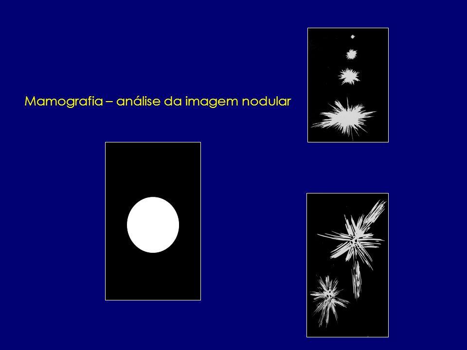 Mamografia – análise da imagem nodular