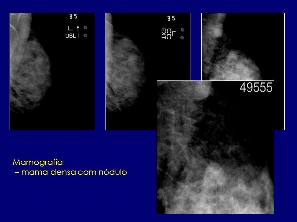 Mamografia – mama densa com nódulo