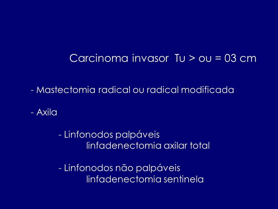 Carcinoma invasor Tu > ou = 03 cm - Mastectomia radical ou radical modificada - Axila - Linfonodos palpáveis linfadenectomia axilar total - Linfonodos
