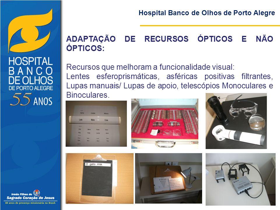 Hospital Banco de Olhos de Porto Alegre ADAPTAÇÃO DE RECURSOS ÓPTICOS E NÃO ÓPTICOS: Recursos que melhoram a funcionalidade visual: Lentes esferoprism