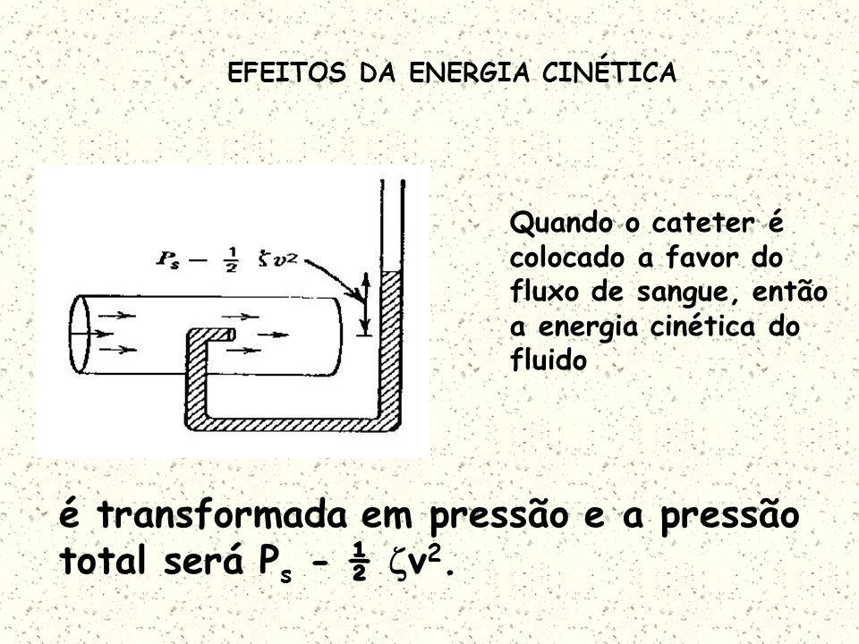 EFEITOS DA ENERGIA CINÉTICA Quando o cateter é colocado a favor do fluxo de sangue, então a energia cinética do fluido é transformada em pressão e a pressão total será P s - ½ v 2.