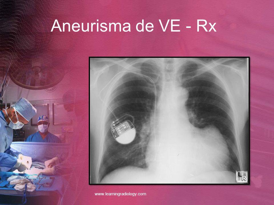 Aneurisma de VE - Rx www.learningradiology.com