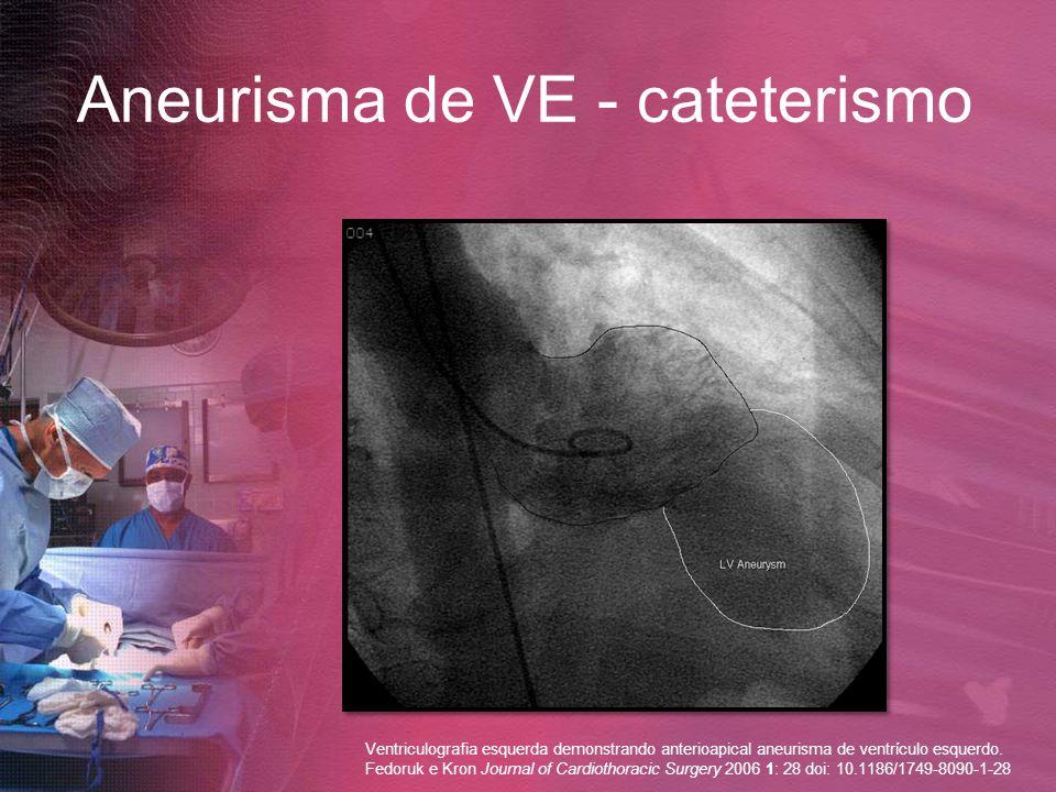 Aneurisma de VE - cateterismo Ventriculografia esquerda demonstrando anterioapical aneurisma de ventrículo esquerdo. Fedoruk e Kron Journal of Cardiot