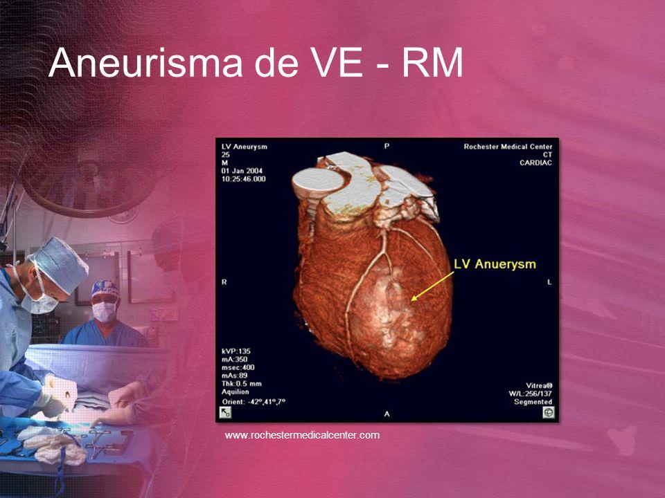 Aneurisma de VE - RM www.rochestermedicalcenter.com