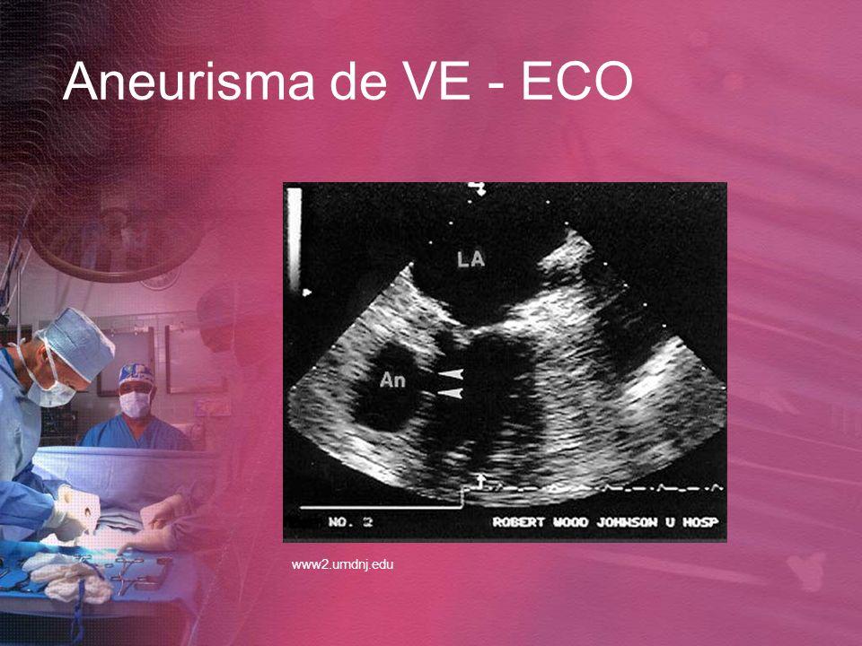 Aneurisma de VE - ECO www2.umdnj.edu