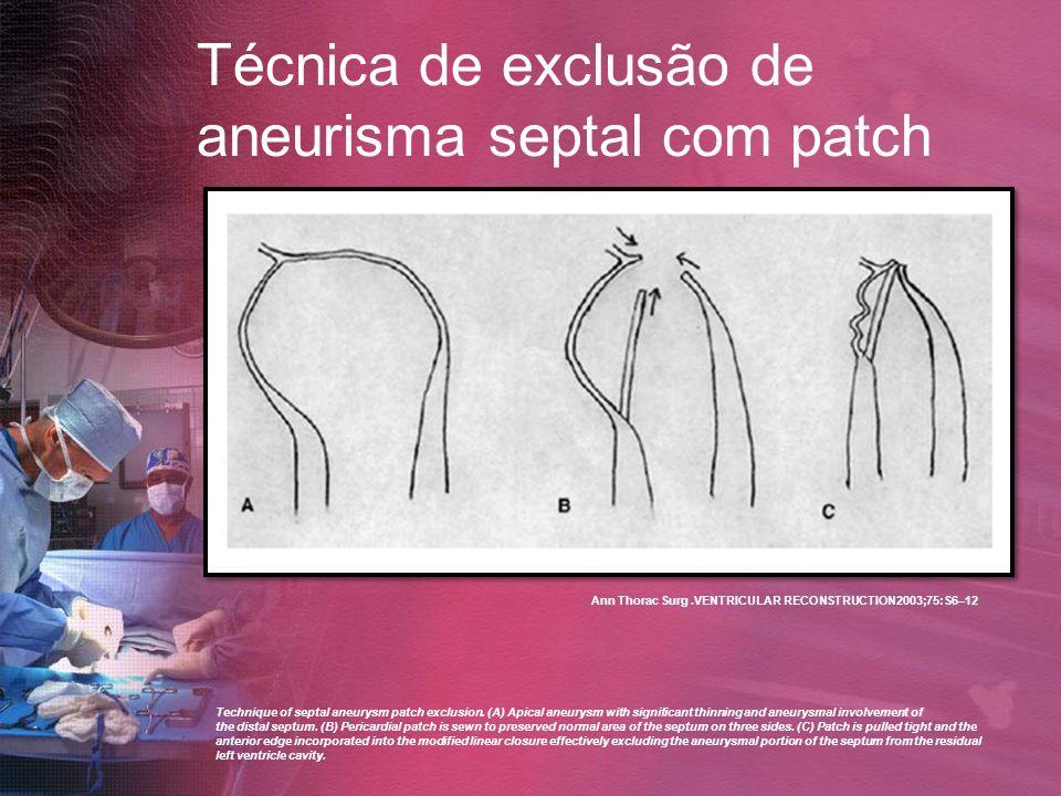 Técnica de exclusão de aneurisma septal com patch Technique of septal aneurysm patch exclusion. (A) Apical aneurysm with significant thinning and aneu