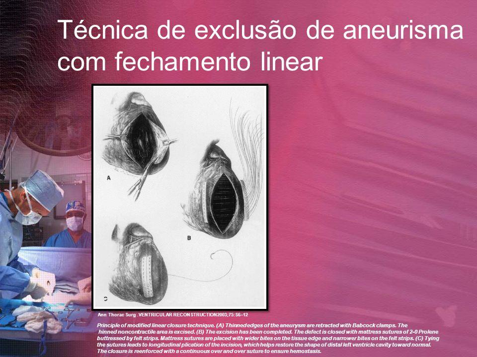 Técnica de exclusão de aneurisma com fechamento linear Principle of modified linear closure technique. (A) Thinned edges of the aneurysm are retracted