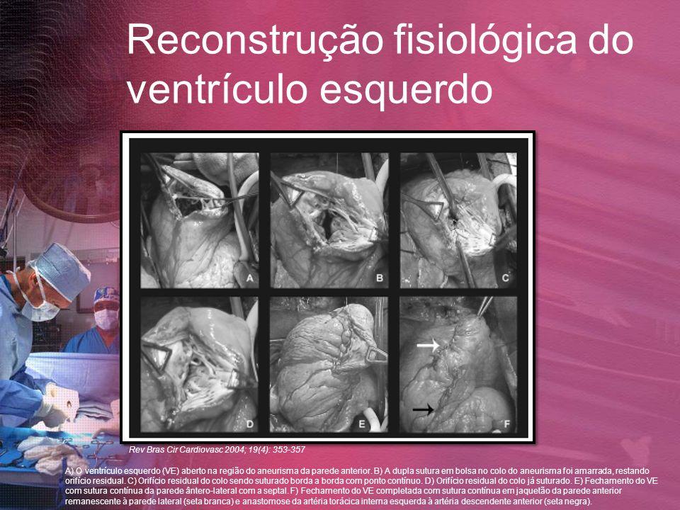 Reconstrução fisiológica do ventrículo esquerdo A) O ventrículo esquerdo (VE) aberto na região do aneurisma da parede anterior. B) A dupla sutura em b