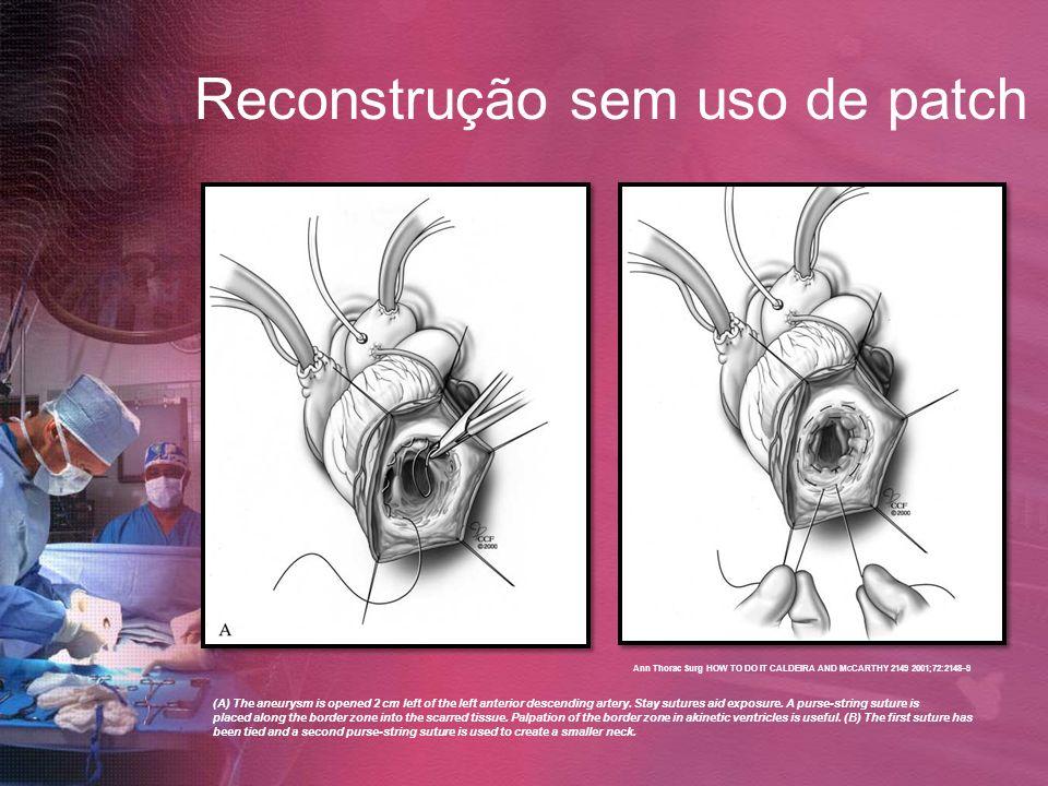 Reconstrução sem uso de patch (A) The aneurysm is opened 2 cm left of the left anterior descending artery. Stay sutures aid exposure. A purse-string s