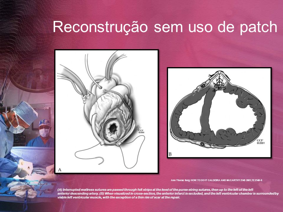 Reconstrução sem uso de patch (A) Interrupted mattress sutures are passed through felt strips at the level of the purse-string sutures, then up to the