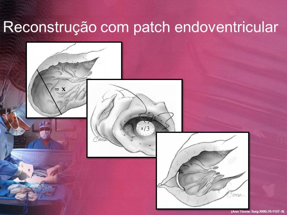 Reconstrução com patch endoventricular (Ann Thorac Surg 2000;70:1127–9)