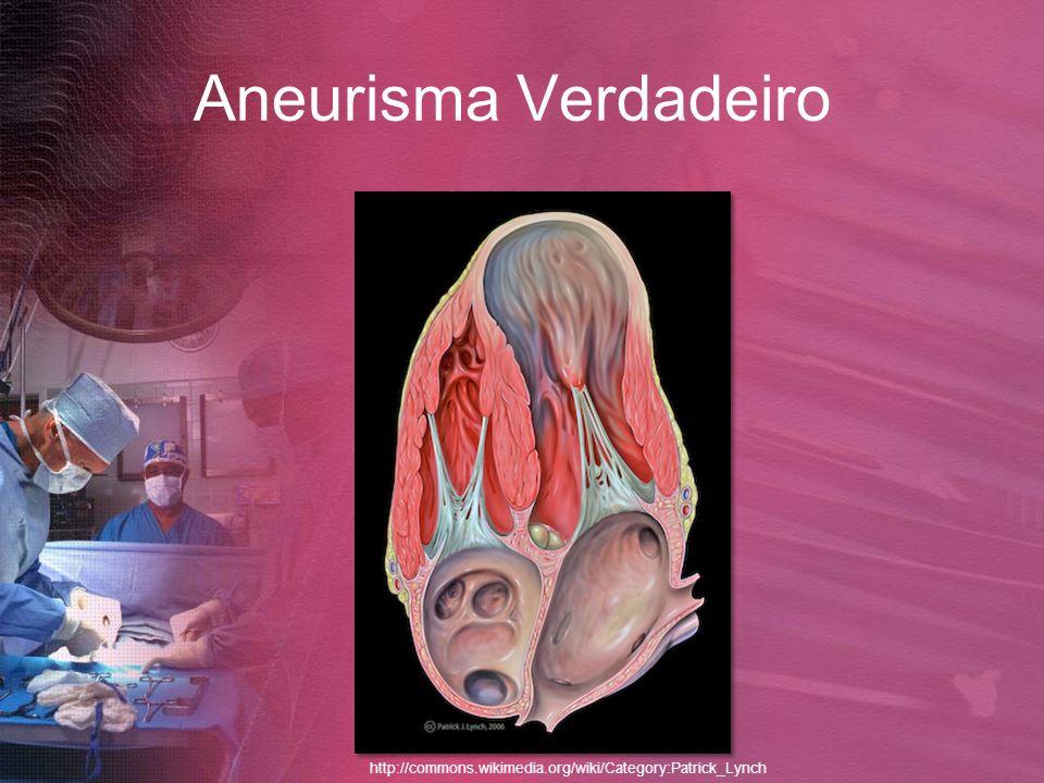 Aneurisma Verdadeiro http://commons.wikimedia.org/wiki/Category:Patrick_Lynch
