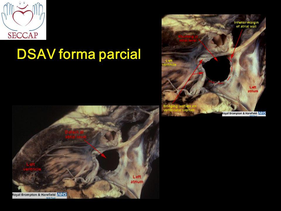 DSAV forma parcial