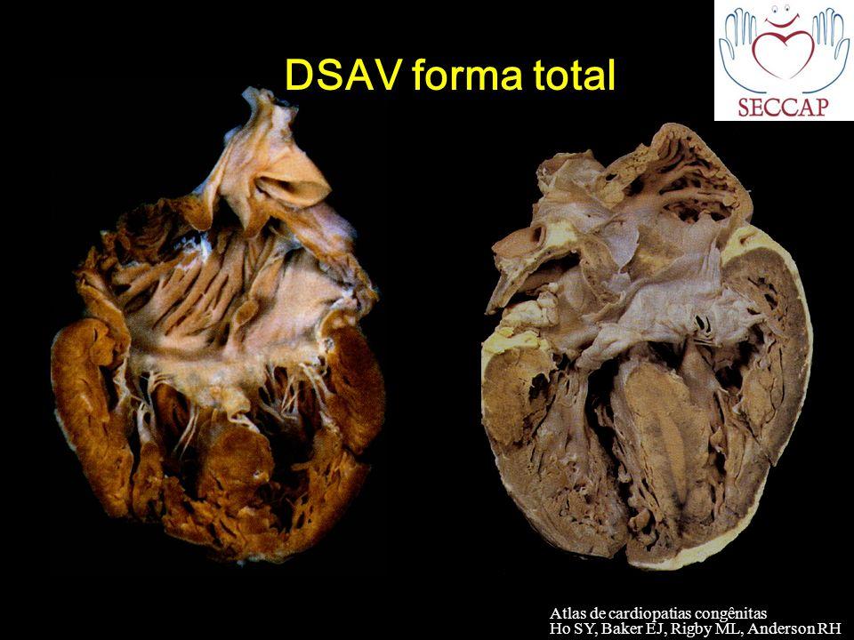 Atlas de cardiopatias congênitas Ho SY, Baker EJ, Rigby ML, Anderson RH DSAV forma total