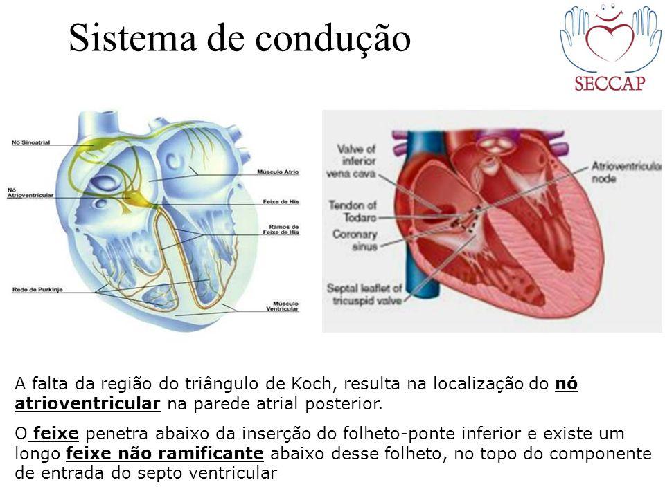 Sistema de condução A falta da região do triângulo de Koch, resulta na localização do nó atrioventricular na parede atrial posterior. O feixe penetra