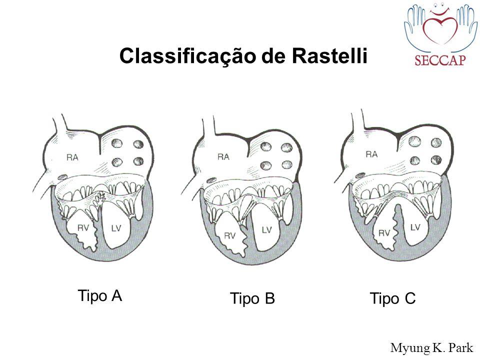 Classificação de Rastelli Tipo A Tipo BTipo C Myung K. Park