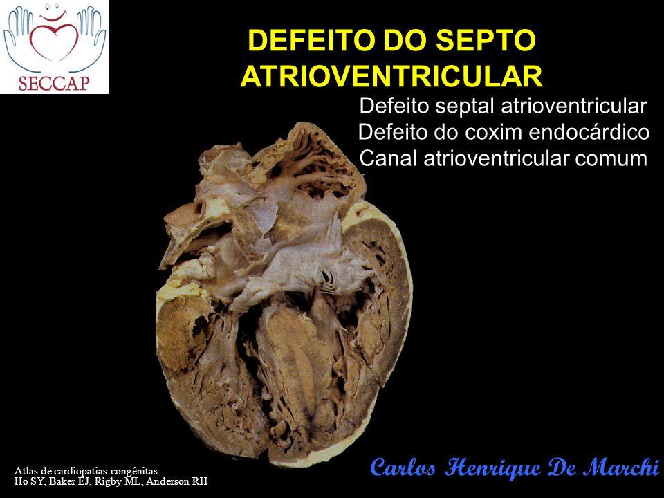 Atlas de cardiopatias congênitas Ho SY, Baker EJ, Rigby ML, Anderson RH DEFEITO DO SEPTO ATRIOVENTRICULAR Carlos Henrique De Marchi Defeito septal atr