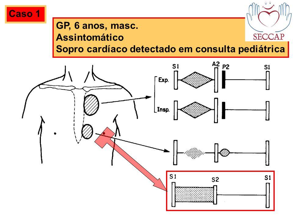 GP, 6 anos, masc. Assintomático Sopro cardíaco detectado em consulta pediátrica Caso 1
