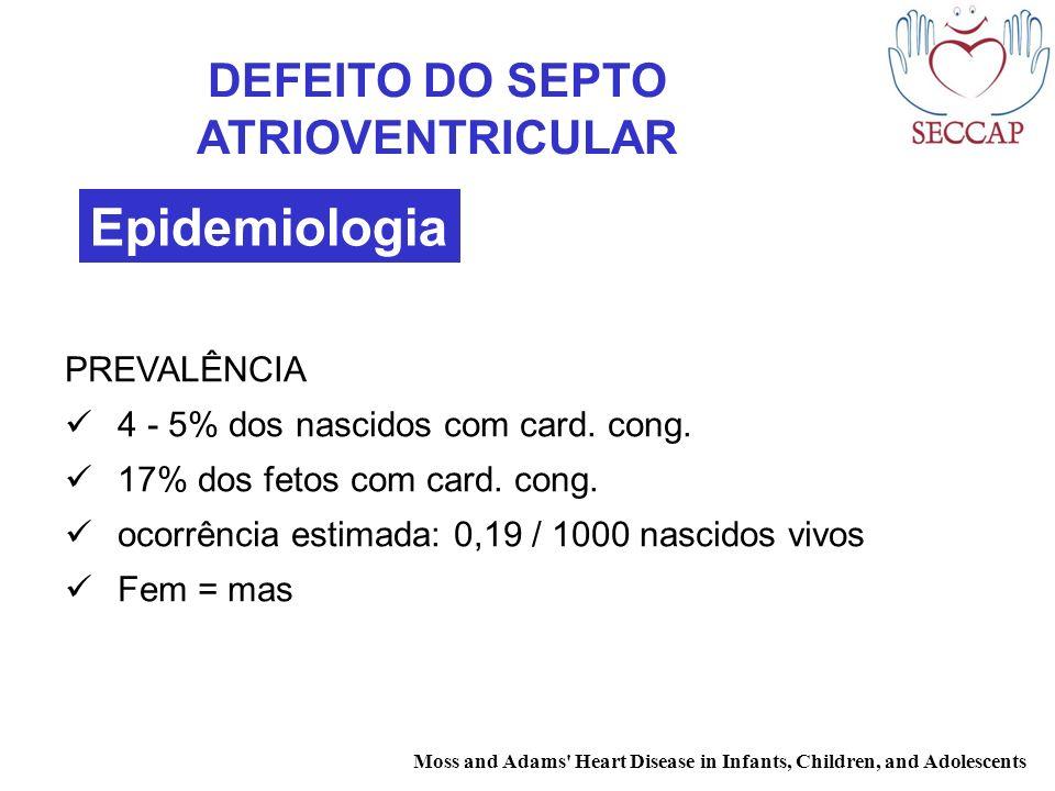 DEFEITO DO SEPTO ATRIOVENTRICULAR PREVALÊNCIA 4 - 5% dos nascidos com card. cong. 17% dos fetos com card. cong. ocorrência estimada: 0,19 / 1000 nasci