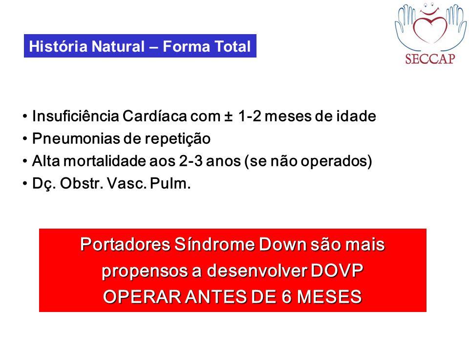 História Natural – Forma Total Insuficiência Cardíaca com ± 1-2 meses de idade Pneumonias de repetição Alta mortalidade aos 2-3 anos (se não operados)
