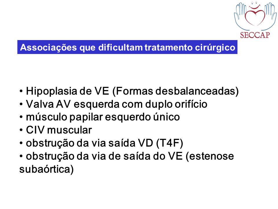 Associações que dificultam tratamento cirúrgico Hipoplasia de VE (Formas desbalanceadas) Valva AV esquerda com duplo orifício músculo papilar esquerdo